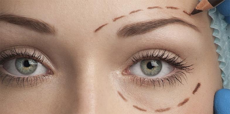 chirurgie esthétique en Tunisie - Les paupières
