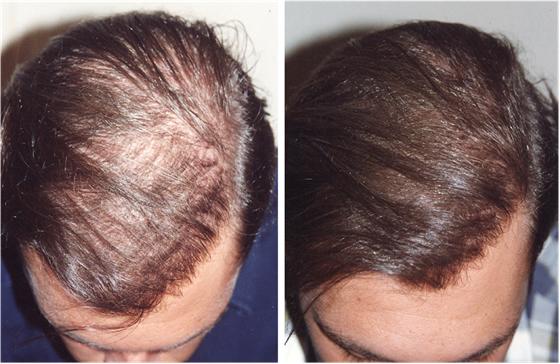 Greffe de cheveux: depuis plus de 15 ans,