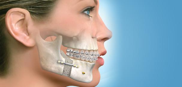 greffe osseuse dentaire en Tunisie